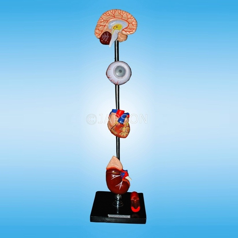 Human Hypertension Model, 6 Parts