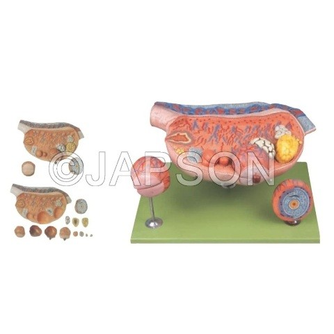 Ovary Model
