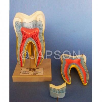 Human Teeth Model, Triple Root Molar