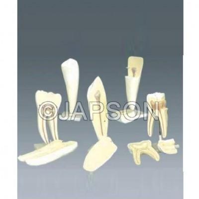 Human Tooth Set