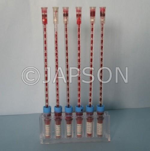 Disposable ESR Tubes/Kit
